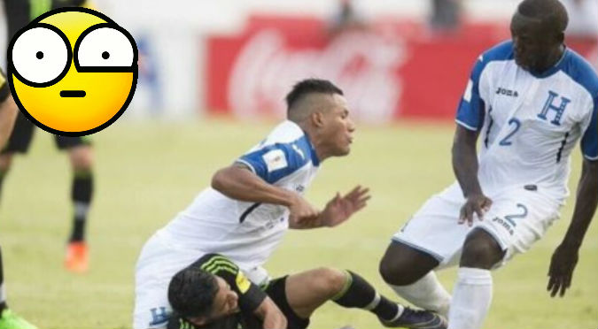 ¡Pobre! No vas a creer la aterradora lesión que sufrió este futbolista - VIDEO