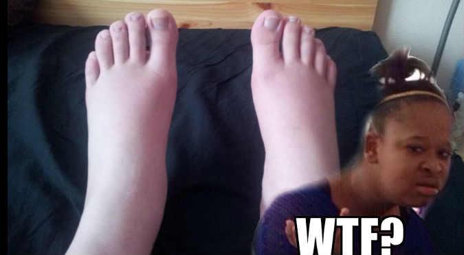 ¡Ni te imaginas por qué sus pies se hicieron virales! - FOTOS
