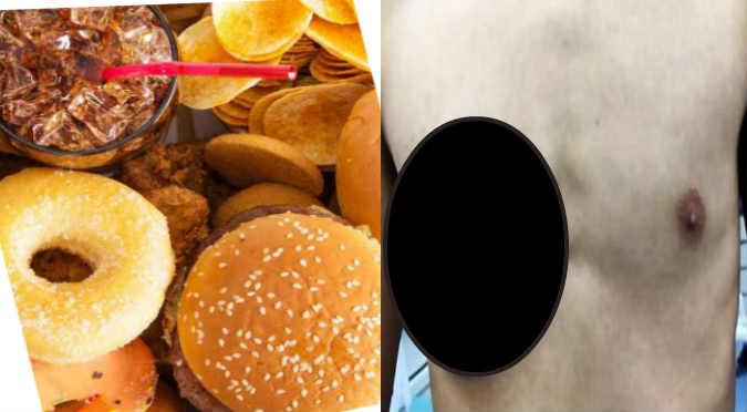 ¡Le crece un seno a joven por comer comida chatarra! ¡WTF! (FOTOS)