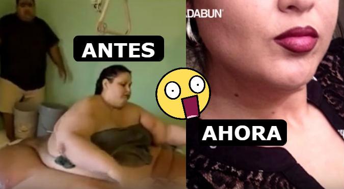 Así luce ahora la mujer más gorda de la historia (VIDEO)