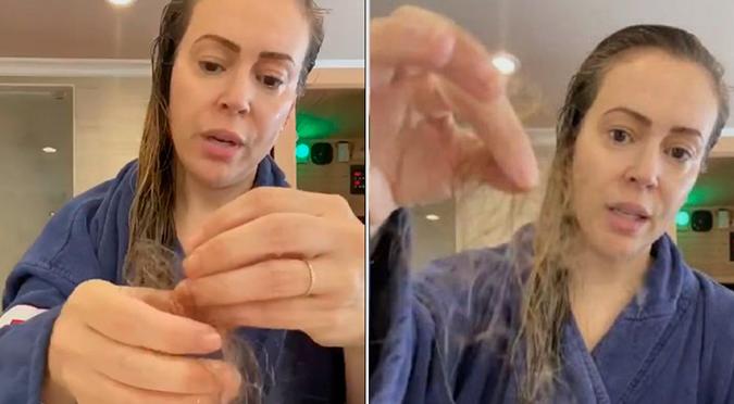Coronavirus: Conocida actriz revela la pérdida de cabello causada por el COVID-19   VIDEO